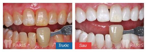 Bí quyết sở hữu hàm răng đẹp hoàn hảo như sao Hàn 3
