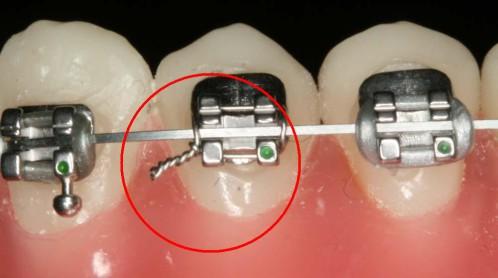 Các loại mắc cài niềng răng: Phân loại - Đặc điểm - Cấu tạo 3