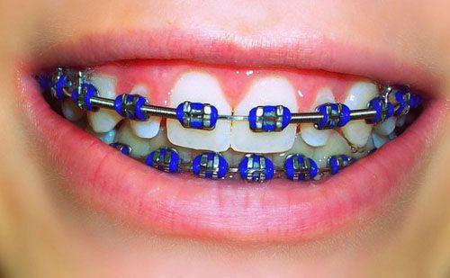 Các loại mắc cài niềng răng: Phân loại - Đặc điểm - Cấu tạo 2