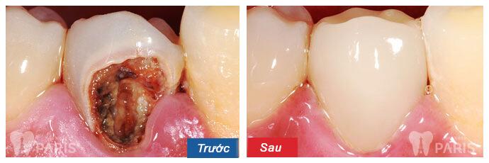 Bí quyết sở hữu hàm răng đẹp hoàn hảo như sao Hàn 6