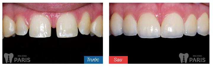 Bí quyết sở hữu hàm răng đẹp hoàn hảo như sao Hàn 7