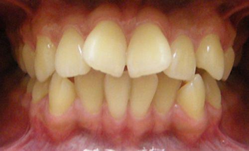 Giá niềng răng cửa bao nhiêu là rẻ nhất hiện nay?