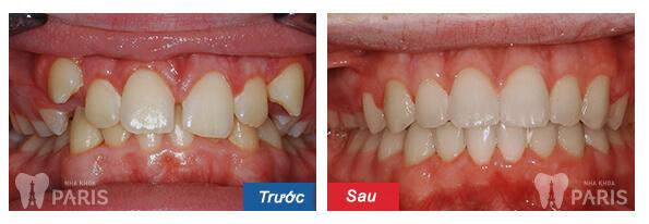Những cách chữa răng cửa thưa được chuyên gia khuyên lựa chọn 4