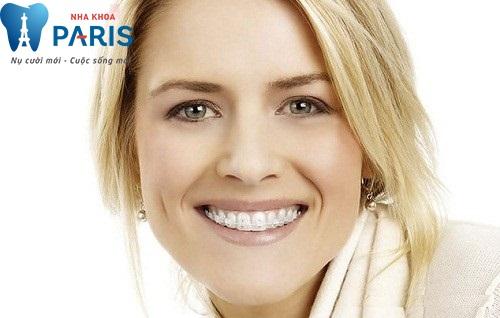 Niềng răng mắc cài sứ - Những thông tin hữu ích dành cho bạn 1