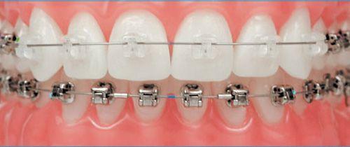 Niềng răng mắc cài sứ - Những thông tin hữu ích dành cho bạn 2