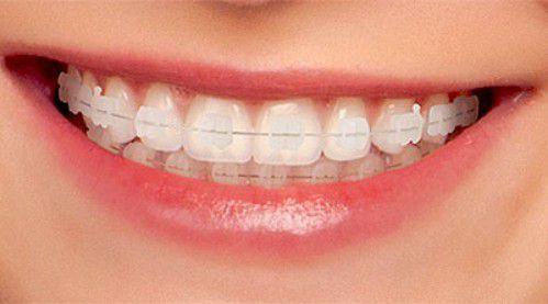 Niềng răng mắc cài sứ - Những thông tin hữu ích dành cho bạn 3