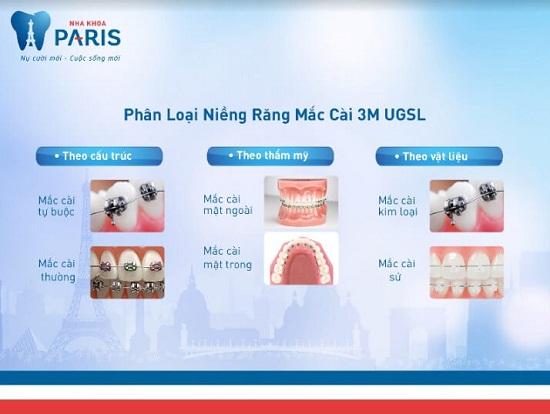 Các loại mắc cài niềng răng: Phân loại - Đặc điểm - Cấu tạo 1