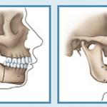 Phẫu thuật hàm hô không cần niềng răng áp dụng khi nào?