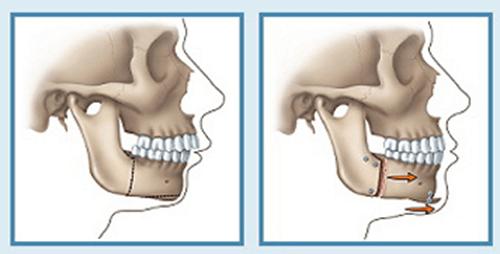 Phẫu thuật hàm hô không cần niềng răng áp dụng khi nào hợp lý nhất? 1
