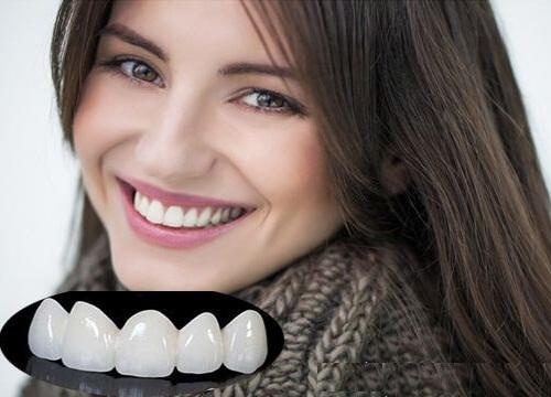 Những cách chữa răng cửa thưa được chuyên gia khuyên lựa chọn 2