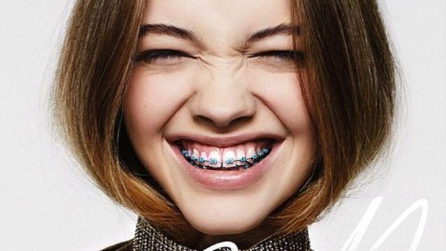 Răng thưa phải làm sao? TOP 4 cách làm răng hết thưa cho bạn 3