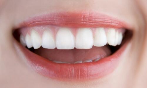 Chuyên gia tư vấn răng khểnh tốt hay xấu hay có nên đi niềng răng không?