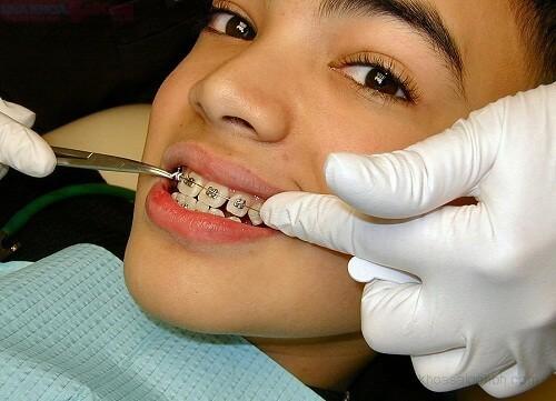 Thời gian niềng răng thưa có thể rút ngắn bằng những cách nào? 1