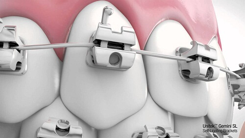 Thời gian niềng răng thưa có thể rút ngắn bằng những cách nào? 2