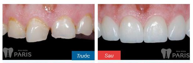 Bí quyết sở hữu hàm răng đẹp hoàn hảo như sao Hàn 5