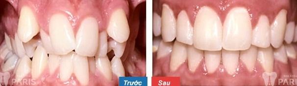 Niềng răng sứ giá bao nhiêu là chính xác? Bảng giá 2017 3