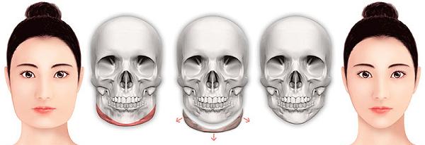 Phẫu thuật hàm mặt bí mật của gương mặt hoàn hảo toàn diện 2