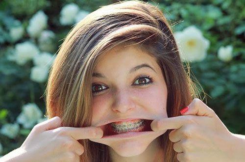 Móm hàm dưới và móm hàm trên có gì khác nhau? 2