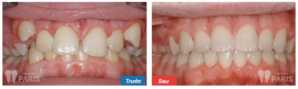 Niềng răng mắc cài kim loại giá bao nhiêu là rẻ nhất? 3