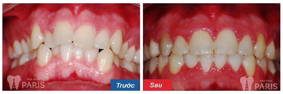 Niềng răng không mắc cài có đắt không? 2