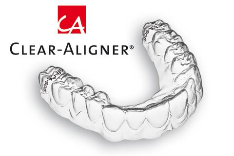 vì sao chi phí niềng răng không mắc cài clear aligner lại thấp? 1