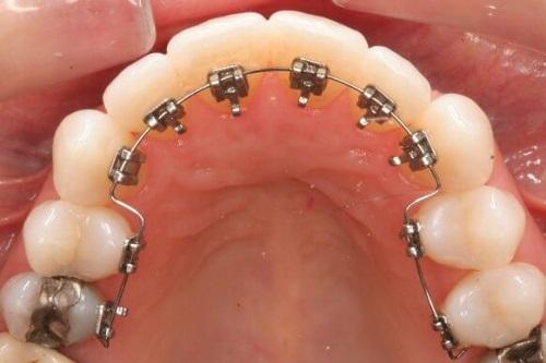 Lời khuyên: Có nên niềng răng mắc cài mặt lưỡi không? 1