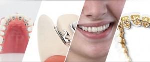 Có ai niềng răng mặt trong chưa, có nên niềng răng mặt trong không?