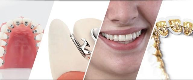 Có ai niềng răng mặt trong chưa, có nên niềng răng mặt trong không? 1