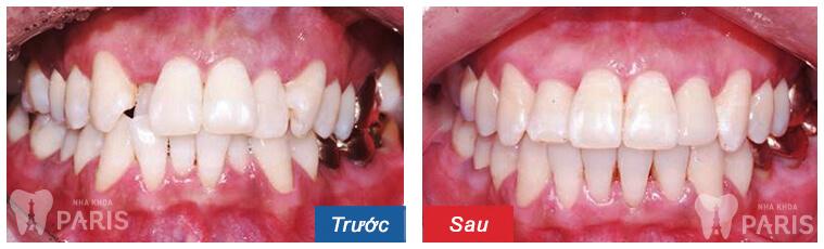 Niềng răng mắc cài kim loại giá bao nhiêu là rẻ nhất? 4