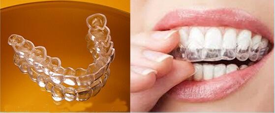 Niềng răng không mắc cài có đắt không? 1