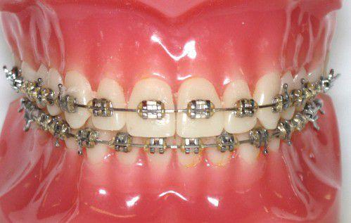 Niềng răng mắc cài có đau không và lời khuyên dành cho bạn 2