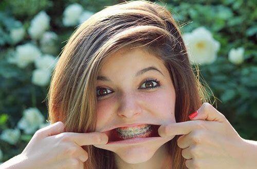 Niềng răng mắc cài kim loại giá bao nhiêu là rẻ nhất? 1