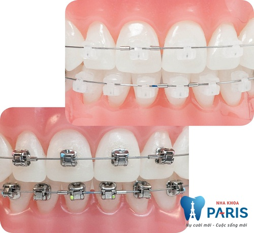 Niềng răng mắc cài sứ giá bao nhiêu tại Paris? - T10.2016 1