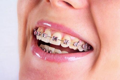 Niềng răng mắc cài tự buộc là gì, khác biệt như thế nào? 1