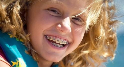 Những yếu tố chi phối niềng răng trong suốt bao lâu?
