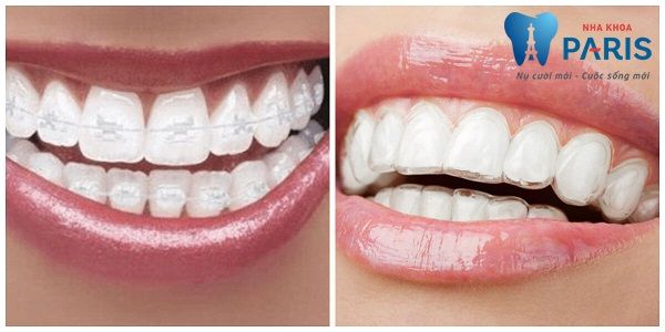 """Có nên niềng răng không? """" Mách nhỏ"""" bạn những điều cần biết mới nhất 2017"""