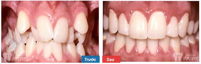 quy trình niềng răng mắc cài 3
