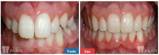 Chỉnh nha tháo lắp eCligner - Giải pháp chỉnh răng Đều & Đẹp nhất 8