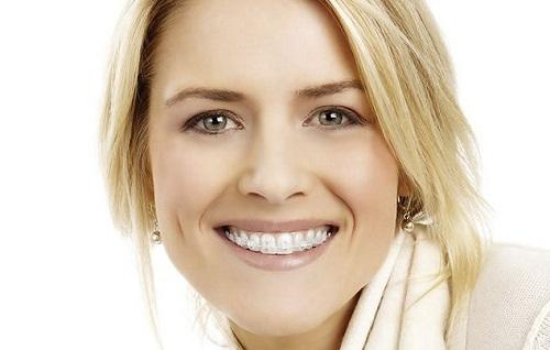 Có nên niềng răng mắc cài sứ không theo nhận định của nha sĩ? 2