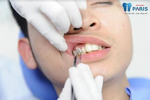 quy trình niềng răng mắc cài 2