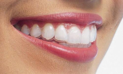 Niềng răng hô không mắc cài có hiệu quả bằng mắc cài? 1