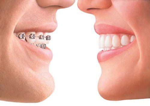 Niềng răng hô không mắc cài có hiệu quả bằng mắc cài? 2