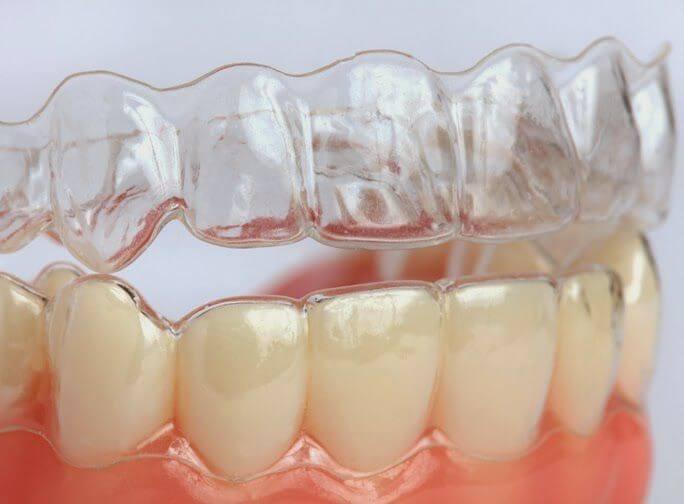 Sự thật: Niềng răng không mắc cài có hiệu quả không? 1