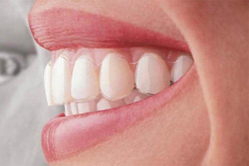 Niềng răng không mắc cài mất bao lâu 1
