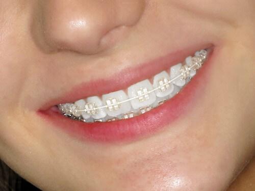 Niềng răng mắc cài pha lê giá bao nhiêu là chính xác? 1