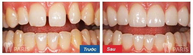 quy trình niềng răng mắc cài 6