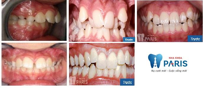 Chỉnh nha tháo lắp eCligner - Giải pháp chỉnh răng Đều & Đẹp nhất 2