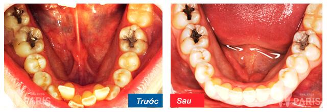 Niềng răng mặt trong có hiệu quả không thưa bác sĩ? 4