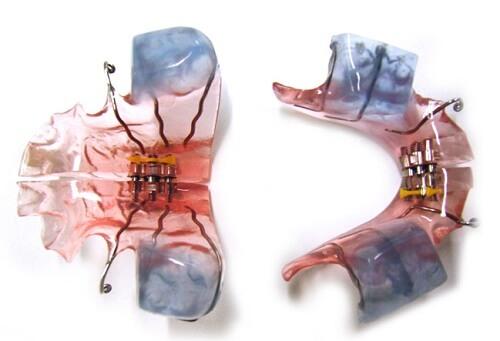 Chỉnh nha KHÔNG nhổ răng - Giải pháp có Hàm răng ĐỀU & Thẩm Mỹ 2