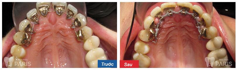 Niềng răng mặt trong có hiệu quả không thưa bác sĩ? 3